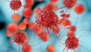 Komórki nowotworowe w komputerowej wizualizacji 3D
