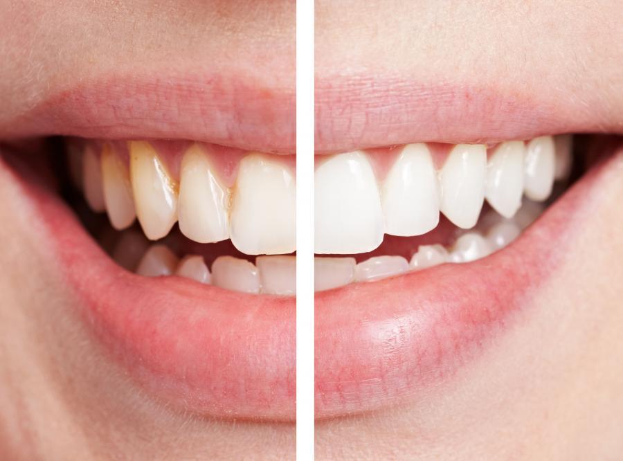 Wybielanie zębów jest bezpieczne dla zdrowia
