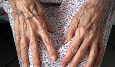 starość senior dłonie