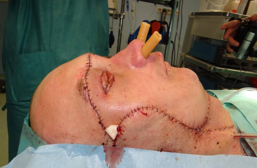 Pacjent po przeszczepie twarzy