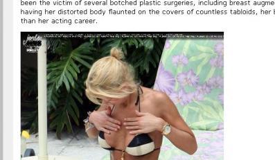 Nie rób liposukcji, bo będziesz tak wyglądać