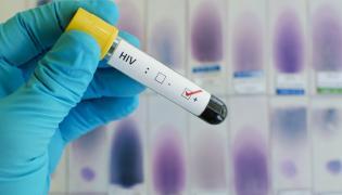 Badanie w kierunku HIV