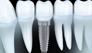 O implanty nie trzeba dbać