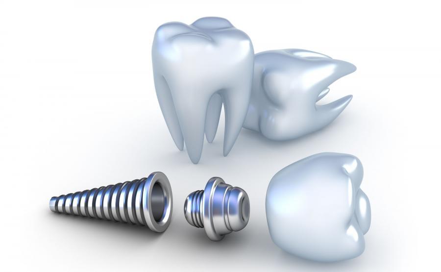 Implanty to jedno z najnowocześniejszych rozwiązań